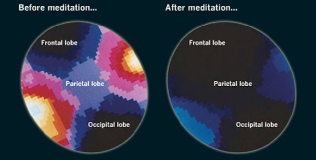 brain on meditation